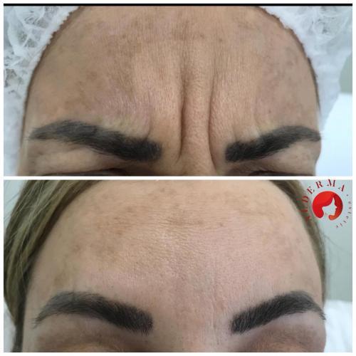 botox riduri alderma